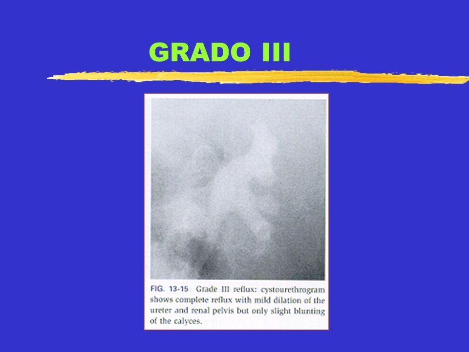GRADO IV
