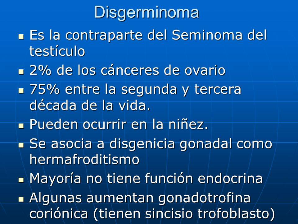 Disgerminoma Es la contraparte del Seminoma del testículo Es la contraparte del Seminoma del testículo 2% de los cánceres de ovario 2% de los cánceres