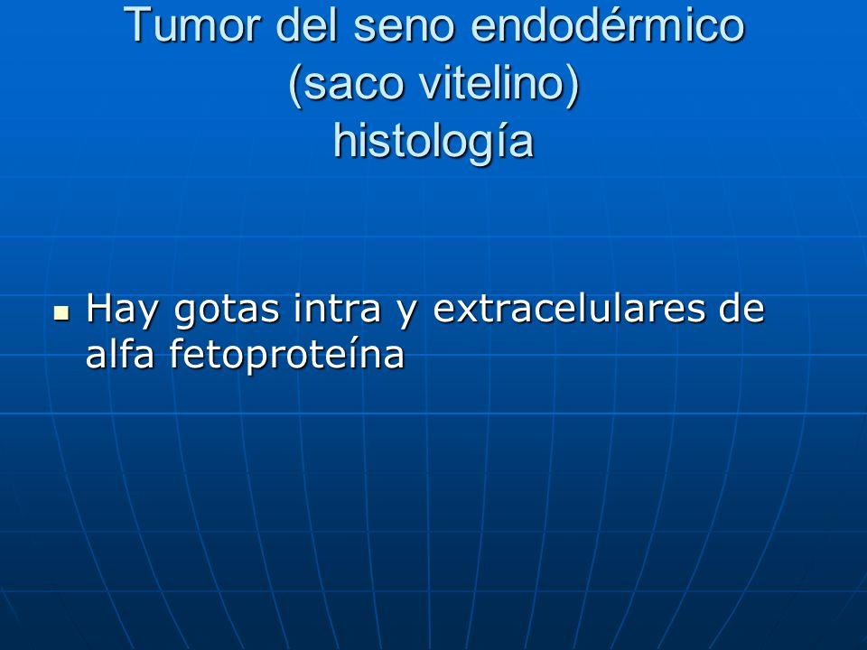 Tumor del seno endodérmico (saco vitelino) histología Hay gotas intra y extracelulares de alfa fetoproteína Hay gotas intra y extracelulares de alfa f