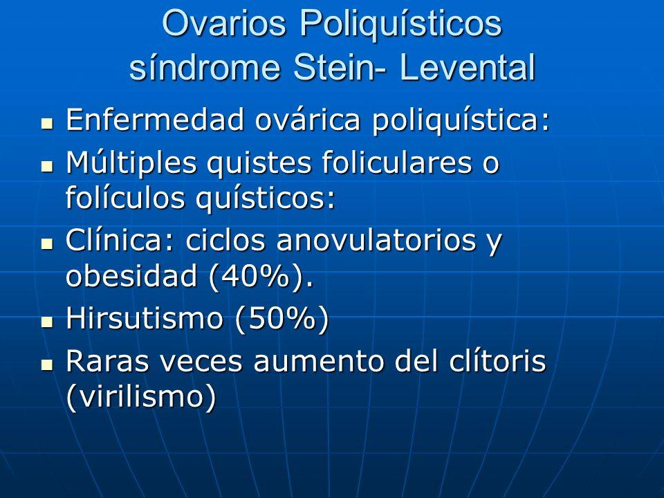 Ovarios Poliquísticos síndrome Stein- Levental Enfermedad ovárica poliquística: Enfermedad ovárica poliquística: Múltiples quistes foliculares o folíc