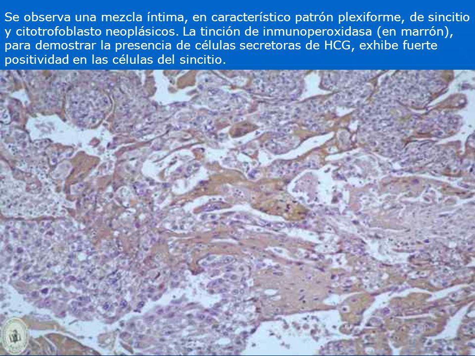 Se observa una mezcla íntima, en característico patrón plexiforme, de sincitio y citotrofoblasto neoplásicos. La tinción de inmunoperoxidasa (en marró