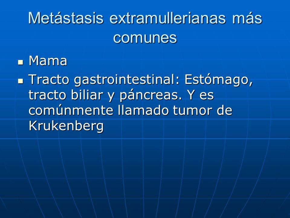 Metástasis extramullerianas más comunes Mama Mama Tracto gastrointestinal: Estómago, tracto biliar y páncreas. Y es comúnmente llamado tumor de Kruken