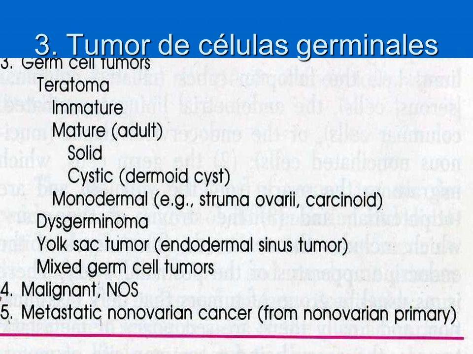 3. Tumor de células germinales