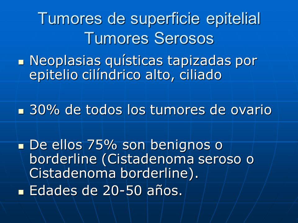 Tumores de superficie epitelial Tumores Serosos Neoplasias quísticas tapizadas por epitelio cilíndrico alto, ciliado Neoplasias quísticas tapizadas po