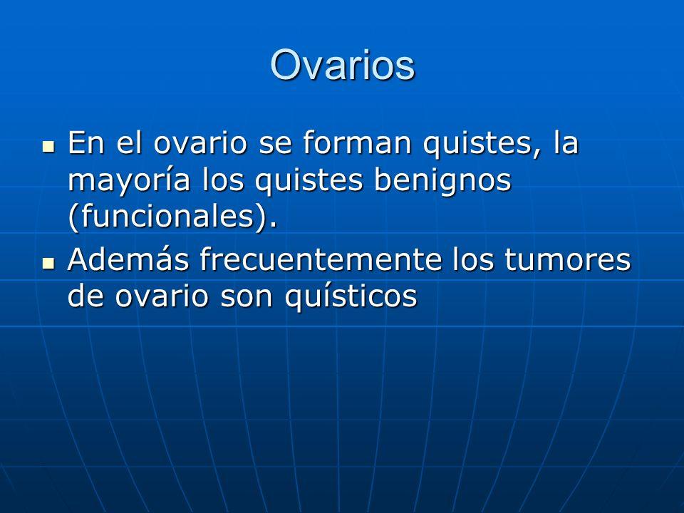 Ovarios En el ovario se forman quistes, la mayoría los quistes benignos (funcionales). En el ovario se forman quistes, la mayoría los quistes benignos