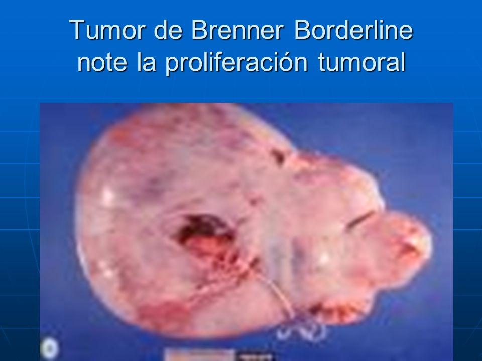 Tumor de Brenner Borderline note la proliferación tumoral