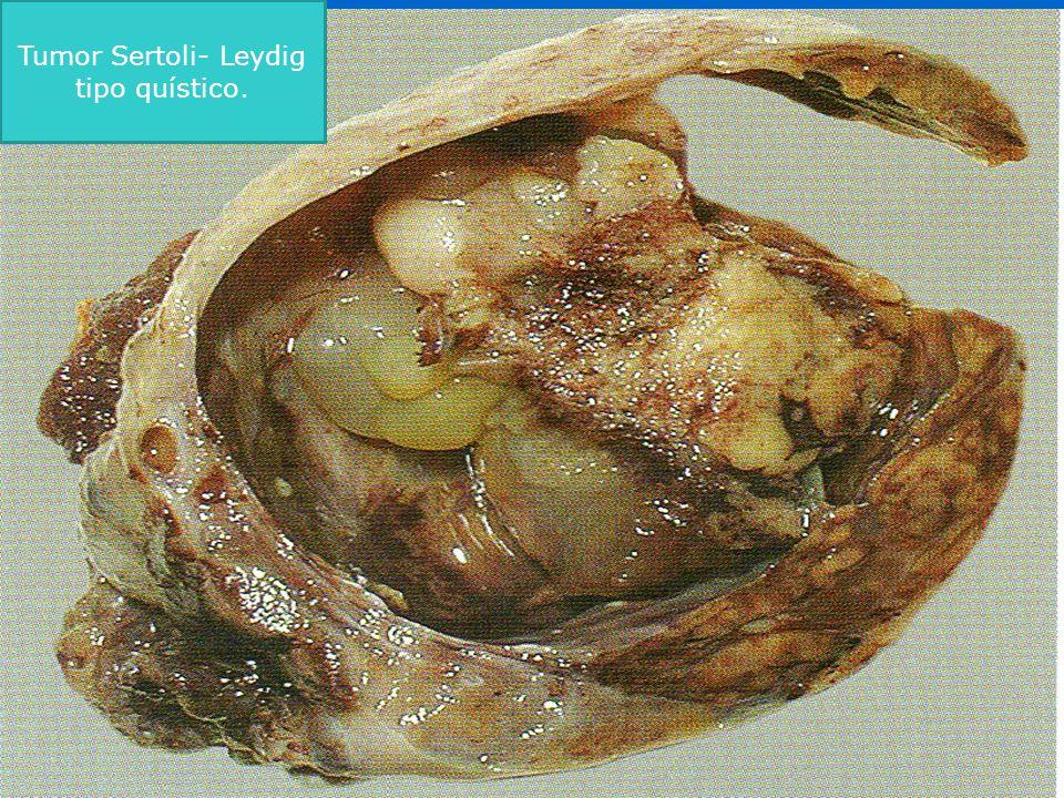 Tumor Sertoli- Leydig tipo quístico.