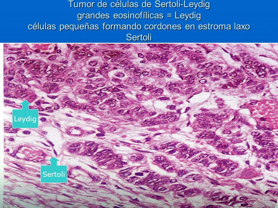 Tumor de células de Sertoli-Leydig grandes eosinofílicas = Leydig células pequeñas formando cordones en estroma laxo Sertoli Leydig Sertoli