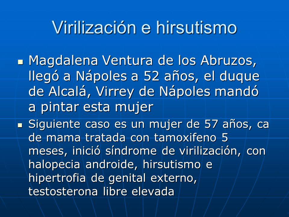 Virilización e hirsutismo Magdalena Ventura de los Abruzos, llegó a Nápoles a 52 años, el duque de Alcalá, Virrey de Nápoles mandó a pintar esta mujer