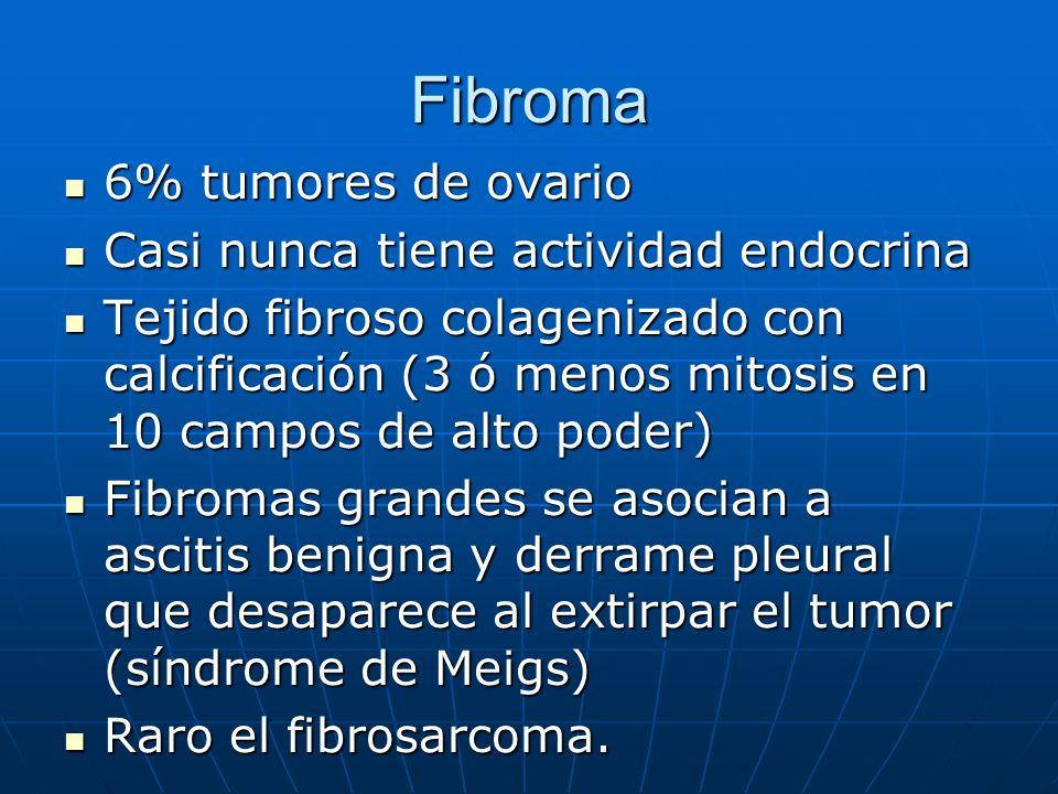 Fibroma 6% tumores de ovario 6% tumores de ovario Casi nunca tiene actividad endocrina Casi nunca tiene actividad endocrina Tejido fibroso colagenizad