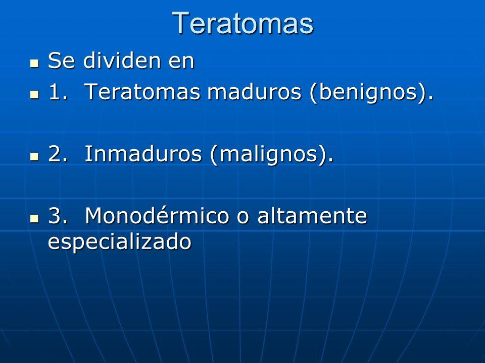 Teratomas Se dividen en Se dividen en 1. Teratomas maduros (benignos). 1. Teratomas maduros (benignos). 2. Inmaduros (malignos). 2. Inmaduros (maligno