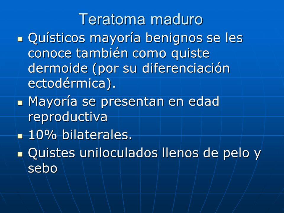 Teratoma maduro Quísticos mayoría benignos se les conoce también como quiste dermoide (por su diferenciación ectodérmica). Quísticos mayoría benignos