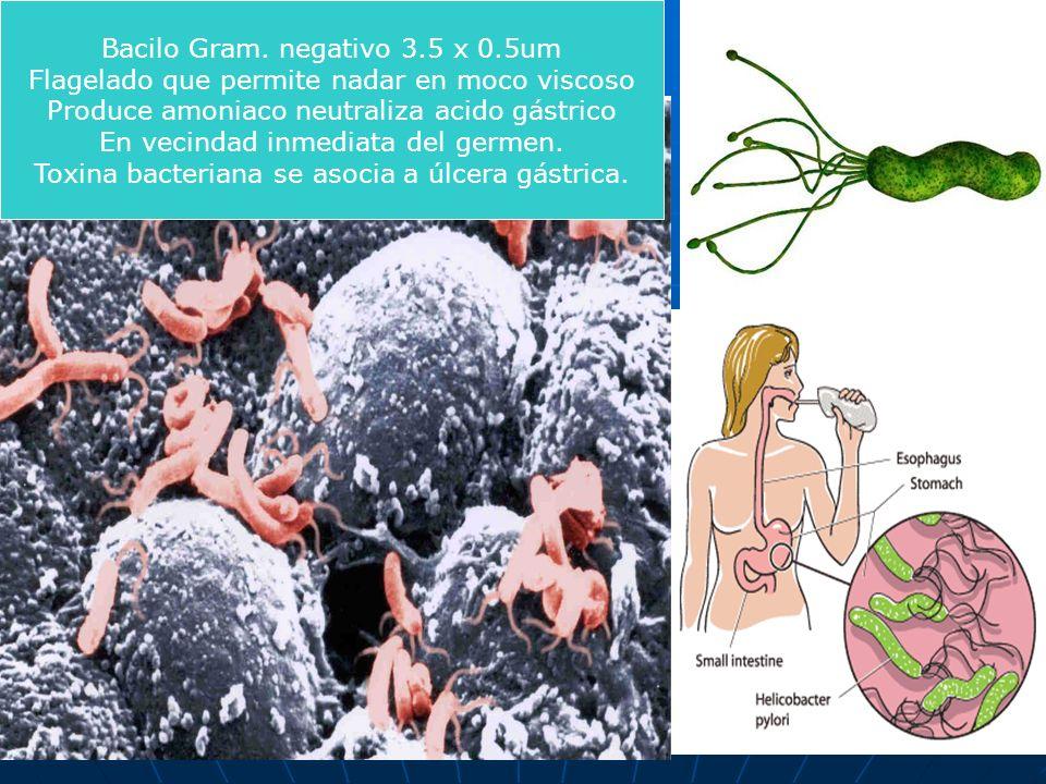 Bacilo Gram. negativo 3.5 x 0.5um Flagelado que permite nadar en moco viscoso Produce amoniaco neutraliza acido gástrico En vecindad inmediata del ger