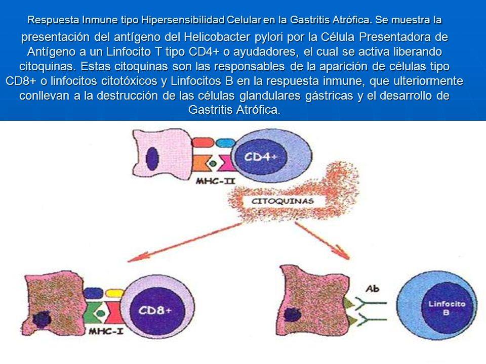 Respuesta Inmune tipo Hipersensibilidad Celular en la Gastritis Atrófica. Se muestra la presentación del antígeno del Helicobacter pylori por la Célul