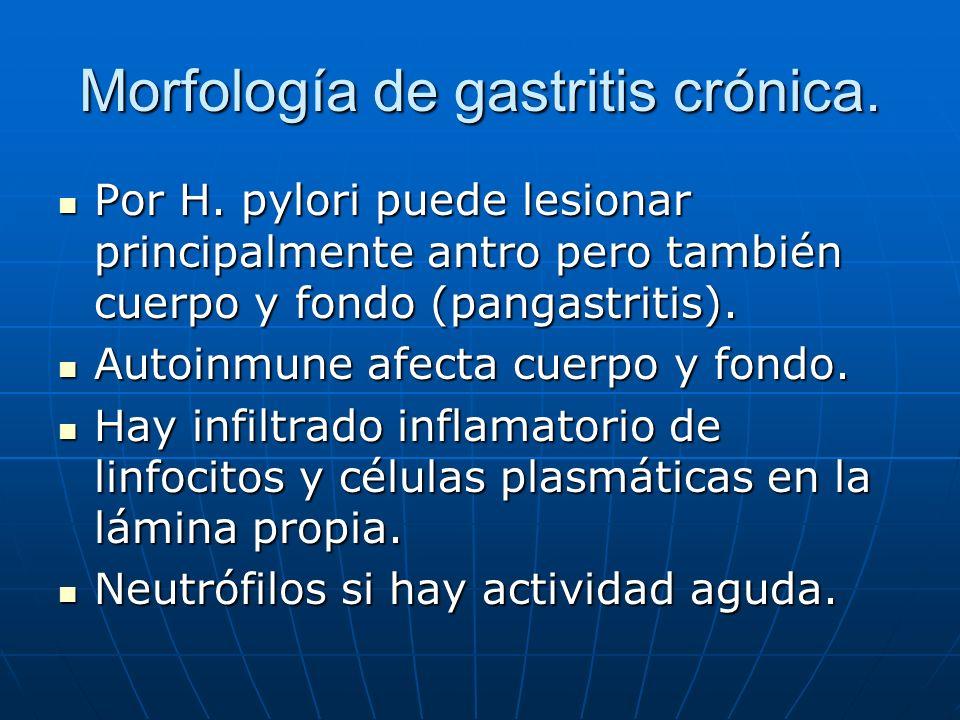 Morfología de gastritis crónica. Por H. pylori puede lesionar principalmente antro pero también cuerpo y fondo (pangastritis). Por H. pylori puede les