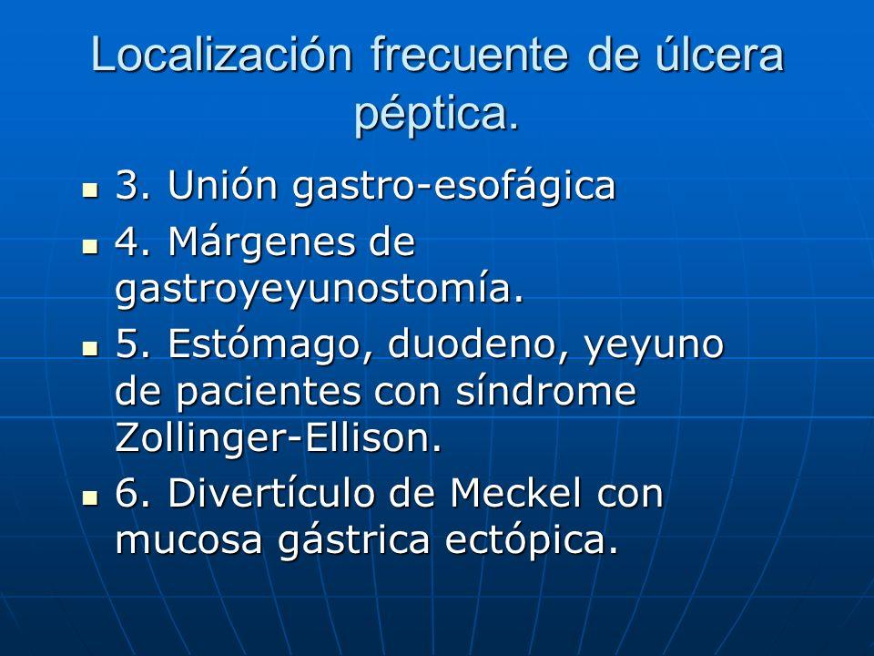 Localización frecuente de úlcera péptica. 3. Unión gastro-esofágica 3. Unión gastro-esofágica 4. Márgenes de gastroyeyunostomía. 4. Márgenes de gastro