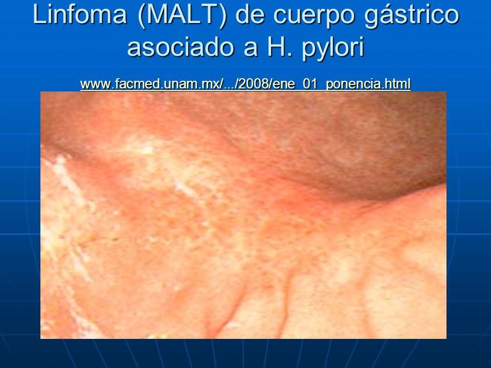 Linfoma (MALT) de cuerpo gástrico asociado a H. pylori www.facmed.unam.mx/.../2008/ene_01_ponencia.html www.facmed.unam.mx/.../2008/ene_01_ponencia.ht