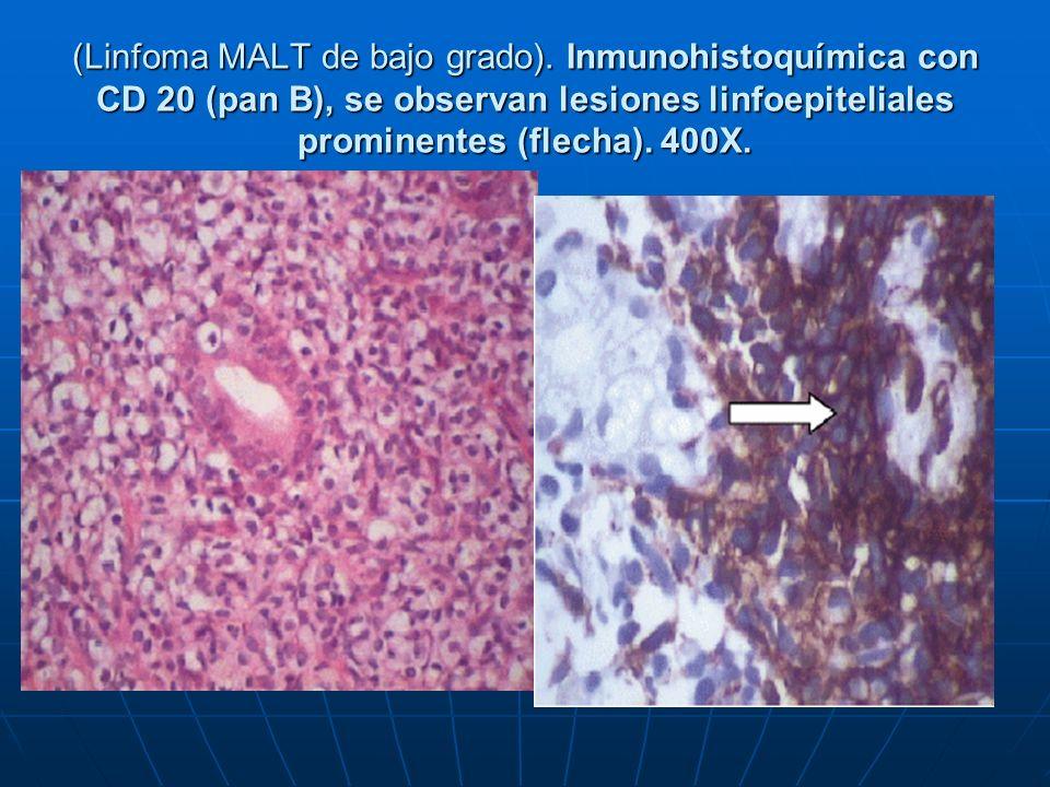 (Linfoma MALT de bajo grado). Inmunohistoquímica con CD 20 (pan B), se observan lesiones linfoepiteliales prominentes (flecha). 400X.