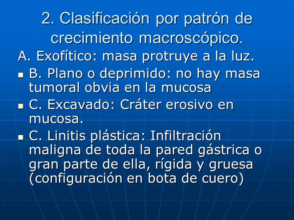 2. Clasificación por patrón de crecimiento macroscópico. A. Exofítico: masa protruye a la luz. B. Plano o deprimido: no hay masa tumoral obvia en la m