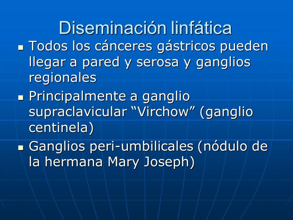 Diseminación linfática Todos los cánceres gástricos pueden llegar a pared y serosa y ganglios regionales Todos los cánceres gástricos pueden llegar a