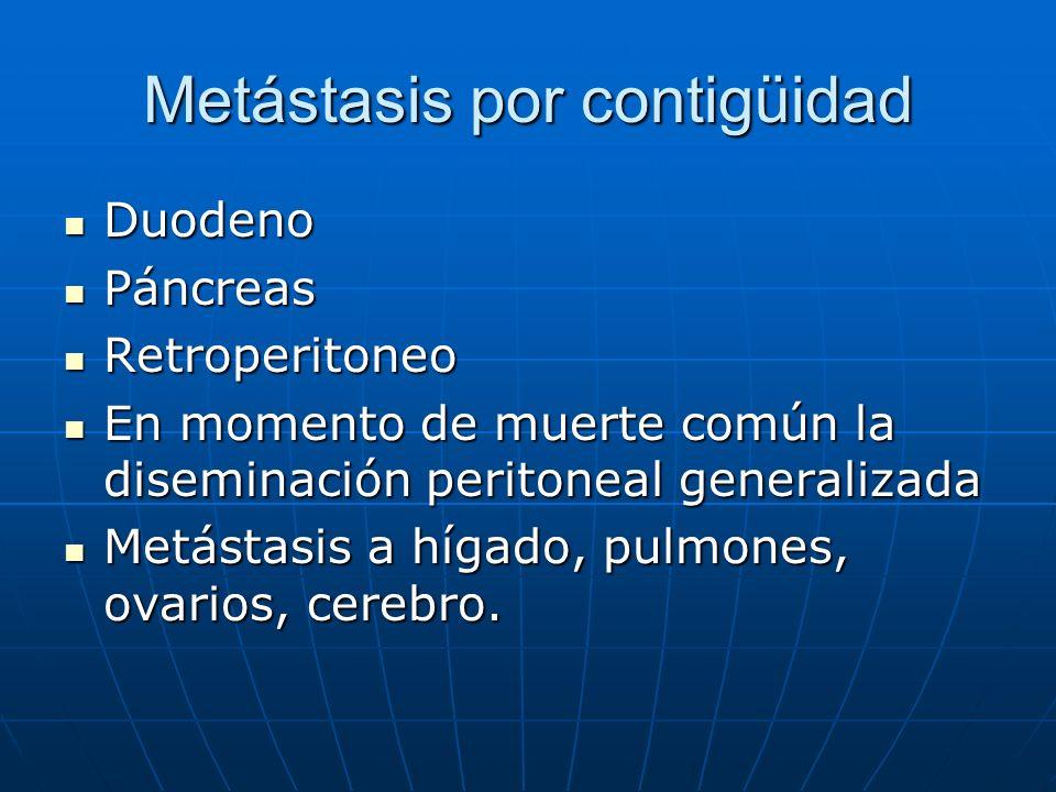 Metástasis por contigüidad Duodeno Duodeno Páncreas Páncreas Retroperitoneo Retroperitoneo En momento de muerte común la diseminación peritoneal gener