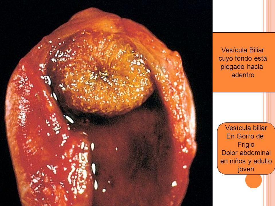 Vesícula Biliar cuyo fondo está plegado hacia adentro Vesícula biliar En Gorro de Frigio Dolor abdominal en niños y adulto joven