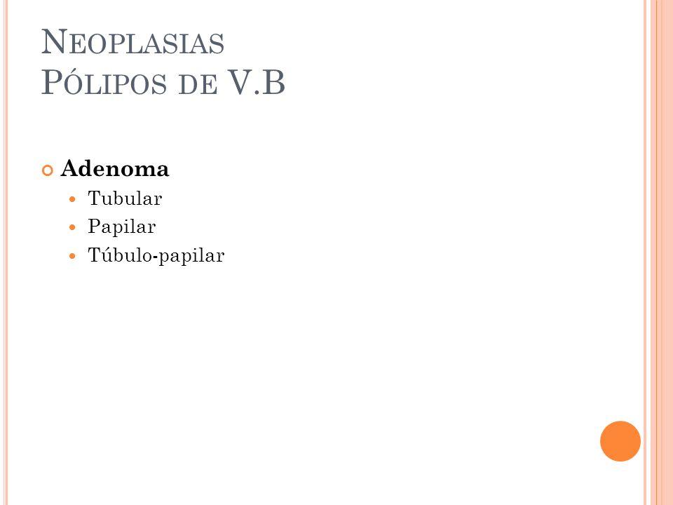 N EOPLASIAS P ÓLIPOS DE V.B Adenoma Tubular Papilar Túbulo-papilar