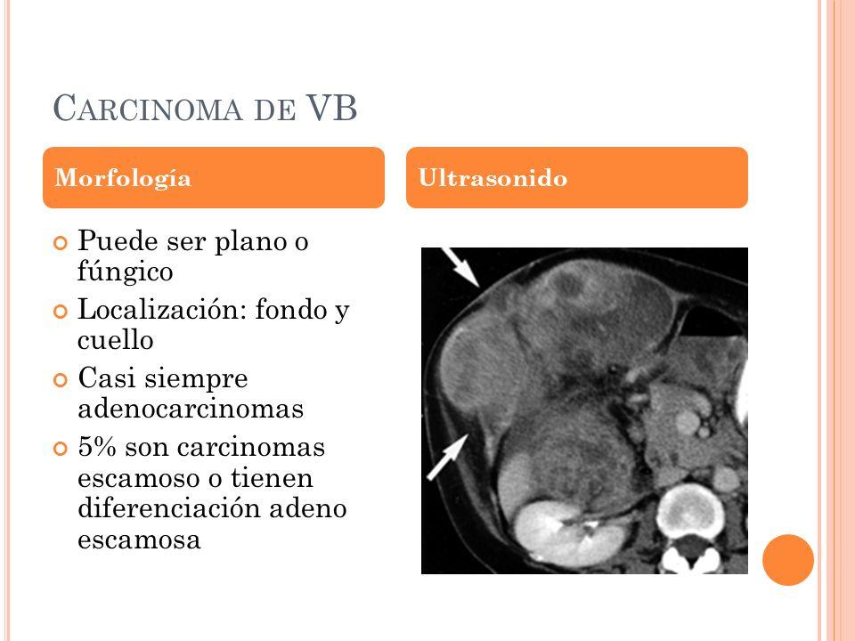 C ARCINOMA DE VB Puede ser plano o fúngico Localización: fondo y cuello Casi siempre adenocarcinomas 5% son carcinomas escamoso o tienen diferenciación adeno escamosa MorfologíaUltrasonido
