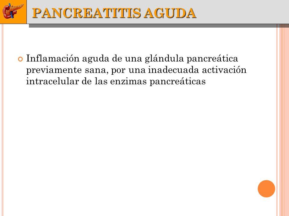 Inflamación aguda de una glándula pancreática previamente sana, por una inadecuada activación intracelular de las enzimas pancreáticas