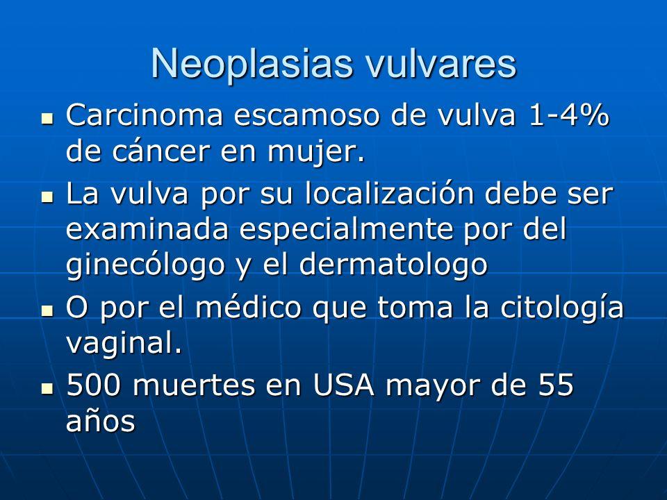 Neoplasias vulvares Carcinoma escamoso de vulva 1-4% de cáncer en mujer. Carcinoma escamoso de vulva 1-4% de cáncer en mujer. La vulva por su localiza