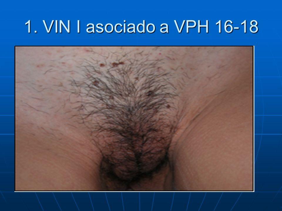 1. VIN I asociado a VPH 16-18