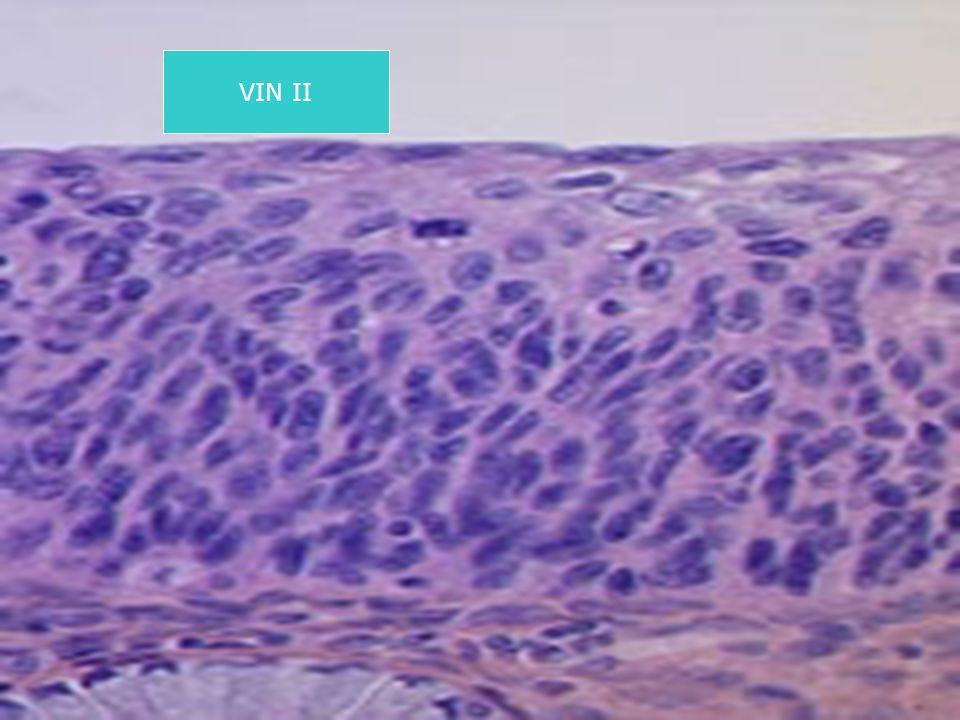 VIN II
