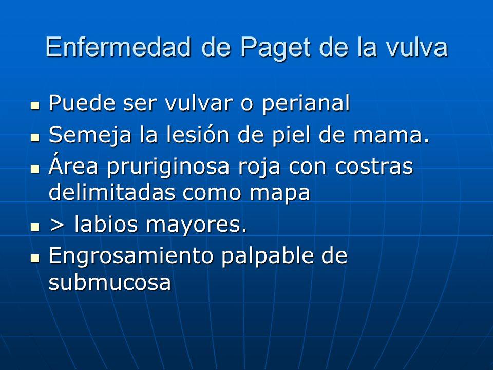 Enfermedad de Paget de la vulva Puede ser vulvar o perianal Puede ser vulvar o perianal Semeja la lesión de piel de mama. Semeja la lesión de piel de