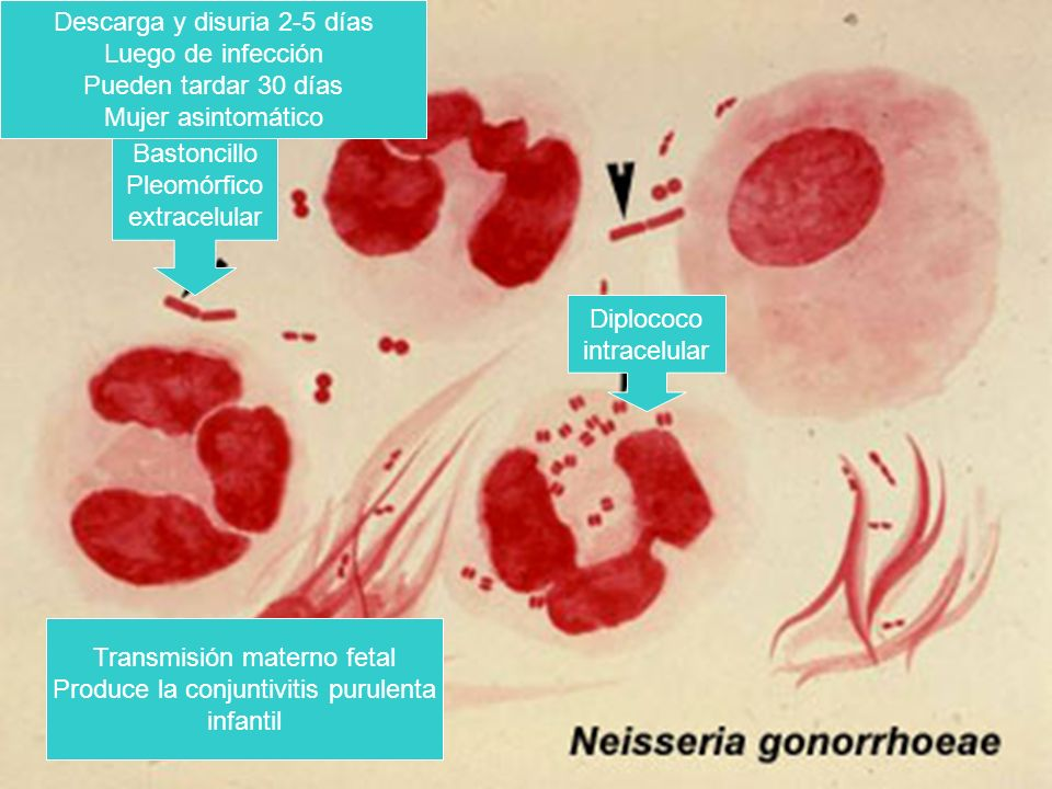 Diplococo intracelular Bastoncillo Pleomórfico extracelular Transmisión materno fetal Produce la conjuntivitis purulenta infantil Descarga y disuria 2