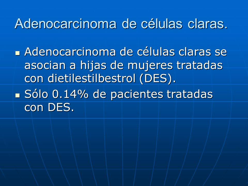 Adenocarcinoma de células claras. Adenocarcinoma de células claras se asocian a hijas de mujeres tratadas con dietilestilbestrol (DES). Adenocarcinoma