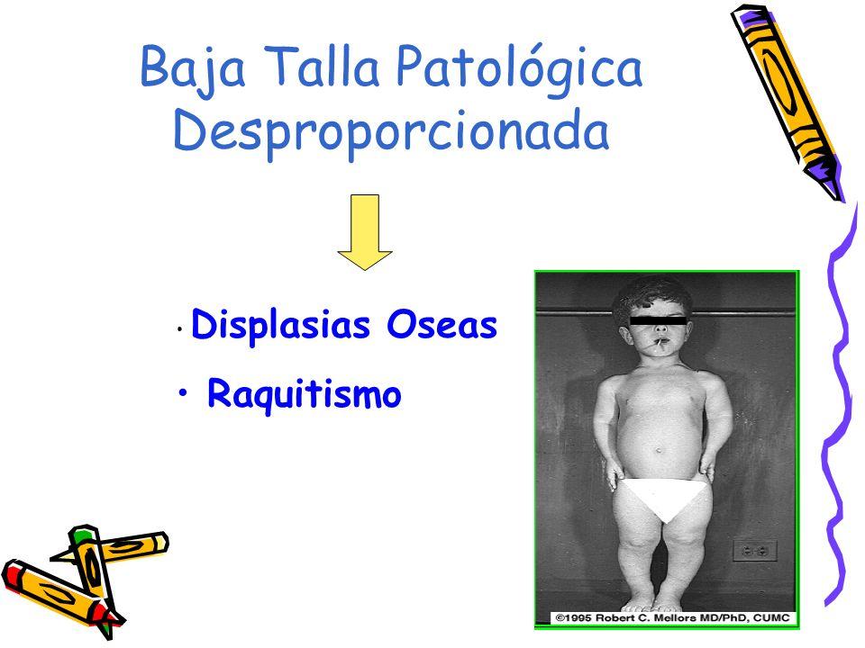 Baja Talla Patológica Desproporcionada Displasias Oseas Raquitismo
