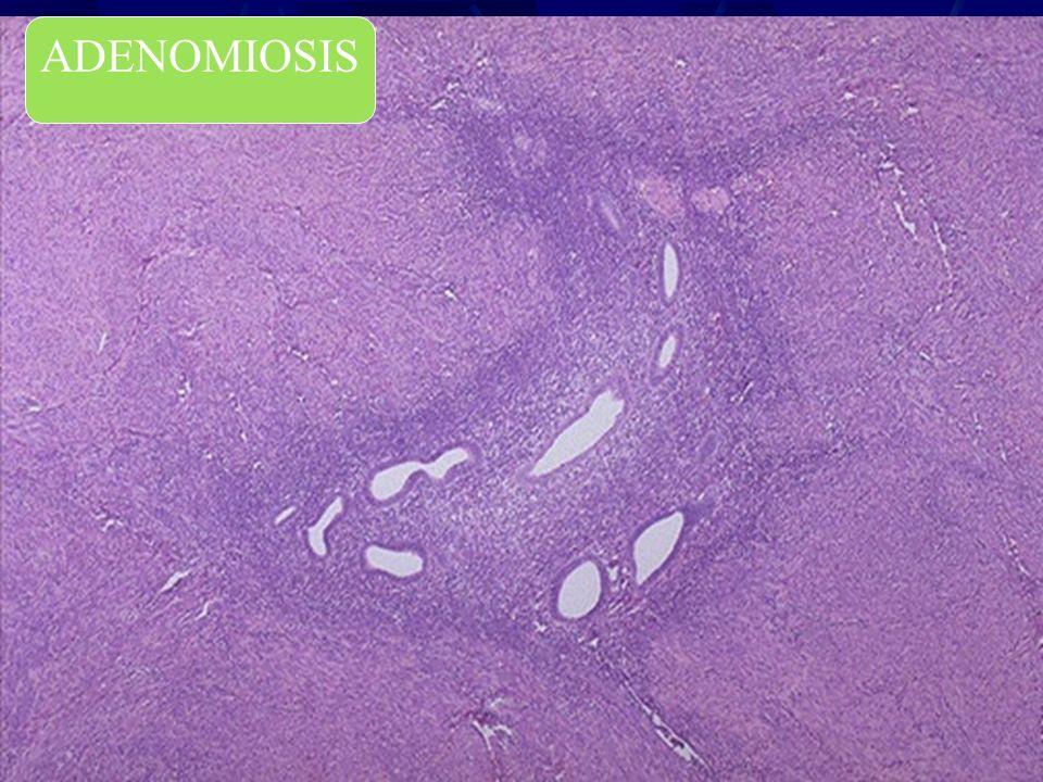 Adenomiosis ADENOMIOSIS