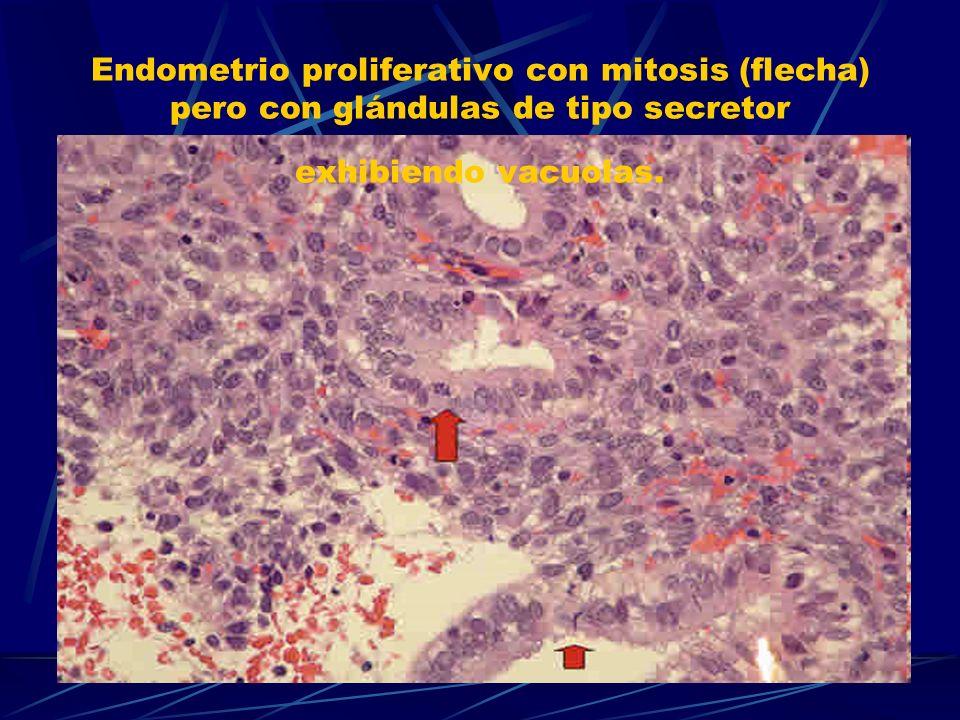 Endometrio proliferativo con mitosis (flecha) pero con glándulas de tipo secretor exhibiendo vacuolas.
