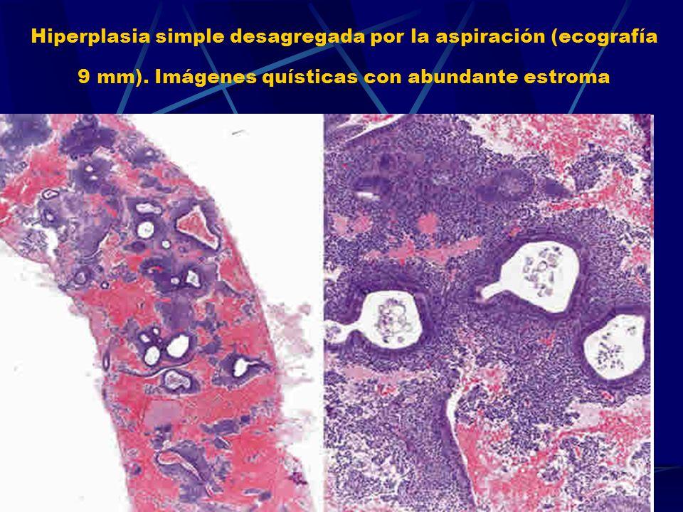Hiperplasia simple desagregada por la aspiración (ecografía 9 mm). Imágenes quísticas con abundante estroma