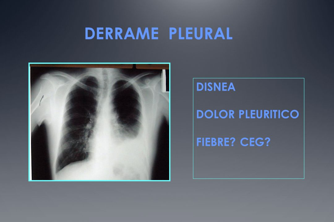 DERRAME PLEURAL DISNEA DOLOR PLEURITICO FIEBRE? CEG?