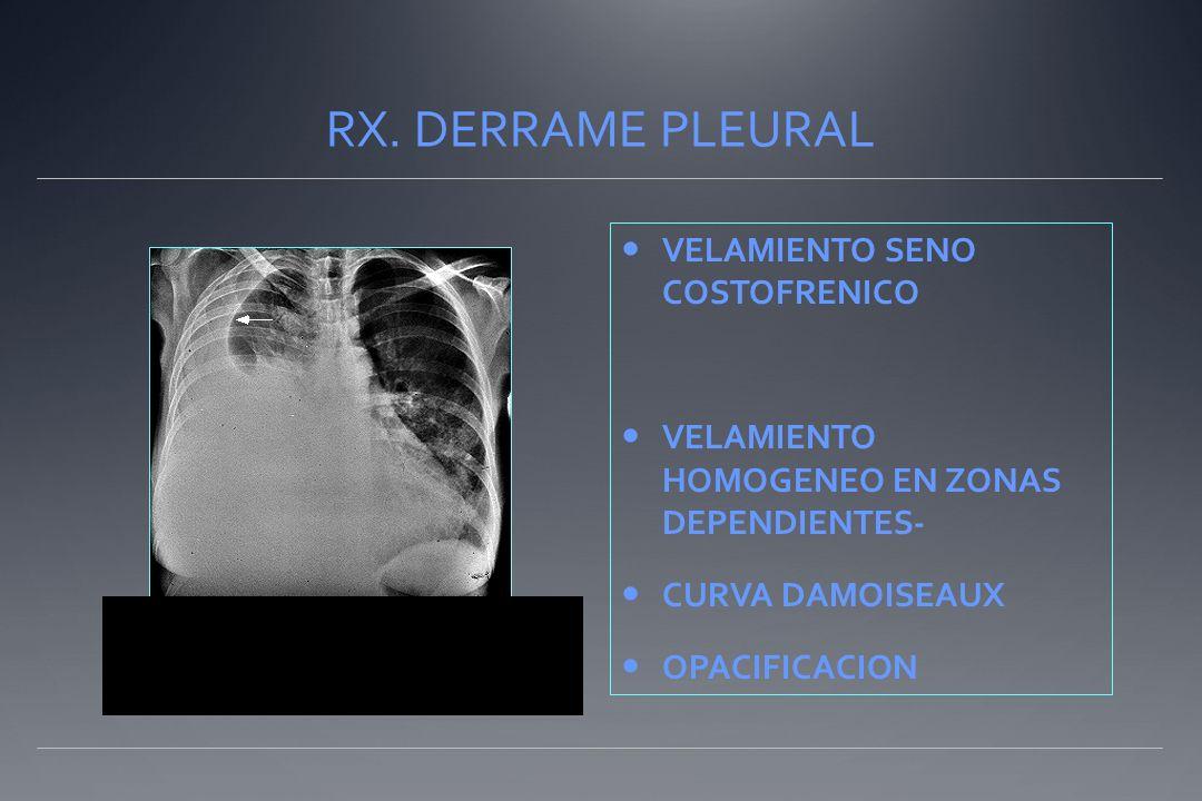 RX. DERRAME PLEURAL VELAMIENTO SENO COSTOFRENICO VELAMIENTO HOMOGENEO EN ZONAS DEPENDIENTES- CURVA DAMOISEAUX OPACIFICACION..