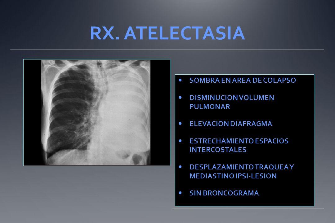 RX. ATELECTASIA SOMBRA EN AREA DE COLAPSO DISMINUCION VOLUMEN PULMONAR ELEVACION DIAFRAGMA ESTRECHAMIENTO ESPACIOS INTERCOSTALES DESPLAZAMIENTO TRAQUE