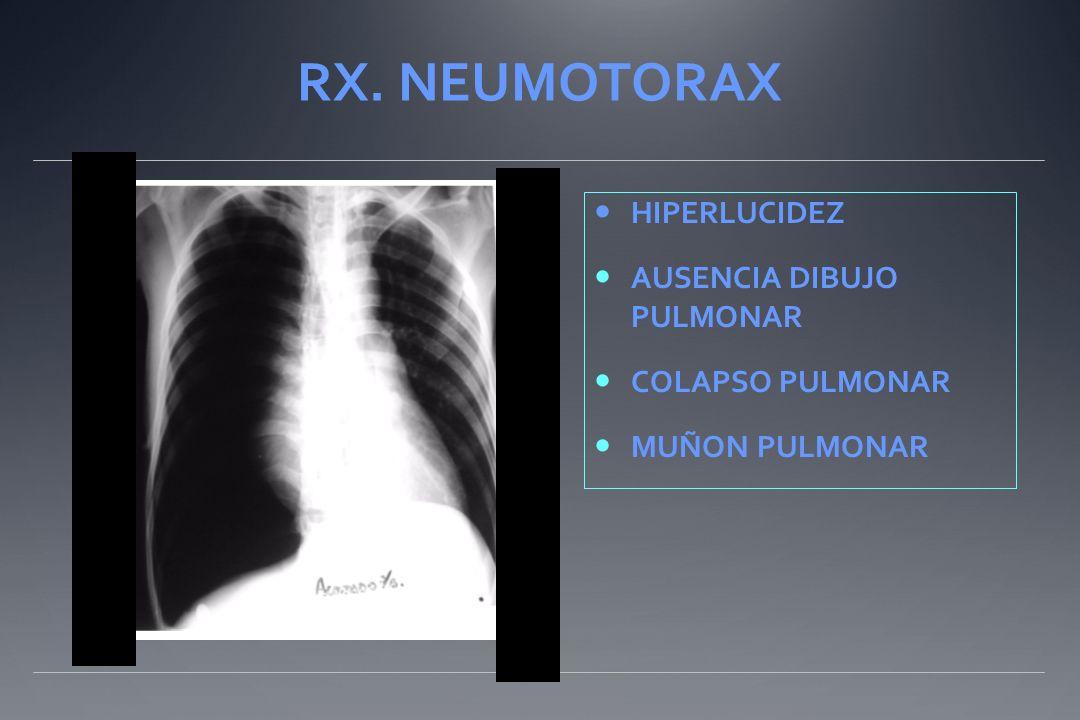RX. NEUMOTORAX HIPERLUCIDEZ AUSENCIA DIBUJO PULMONAR COLAPSO PULMONAR MUÑON PULMONAR..