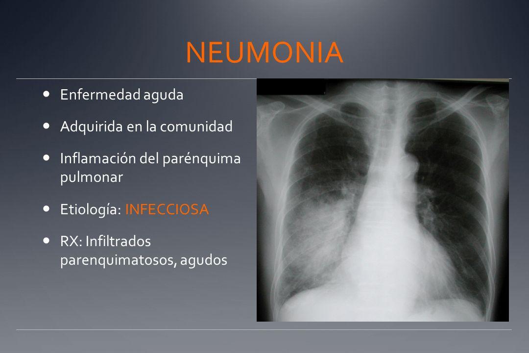 NEUMONIA Enfermedad aguda Adquirida en la comunidad Inflamación del parénquima pulmonar Etiología: INFECCIOSA RX: Infiltrados parenquimatosos, agudos