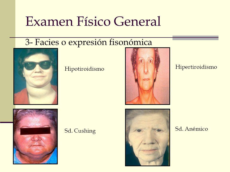 Examen Físico General 3- Facies o expresión fisonómica Hipotiroidismo Sd. Cushing Hipertiroidismo Sd. Anémico