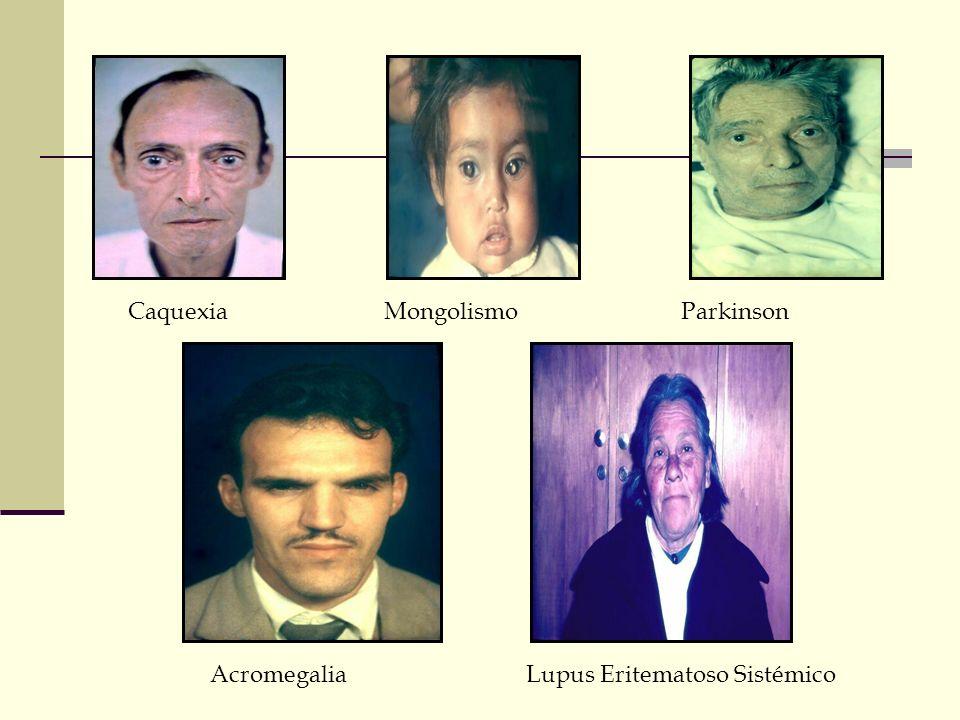 Caquexia Mongolismo Parkinson Acromegalia Lupus Eritematoso Sistémico