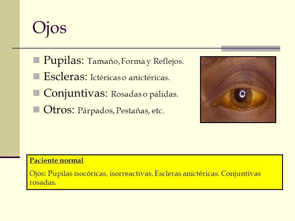 Ojos Pupilas: Tamaño, Forma y Reflejos. Escleras: Ictéricas o anictéricas. Conjuntivas: Rosadas o pálidas. Otros: Párpados, Pestañas, etc. Paciente no