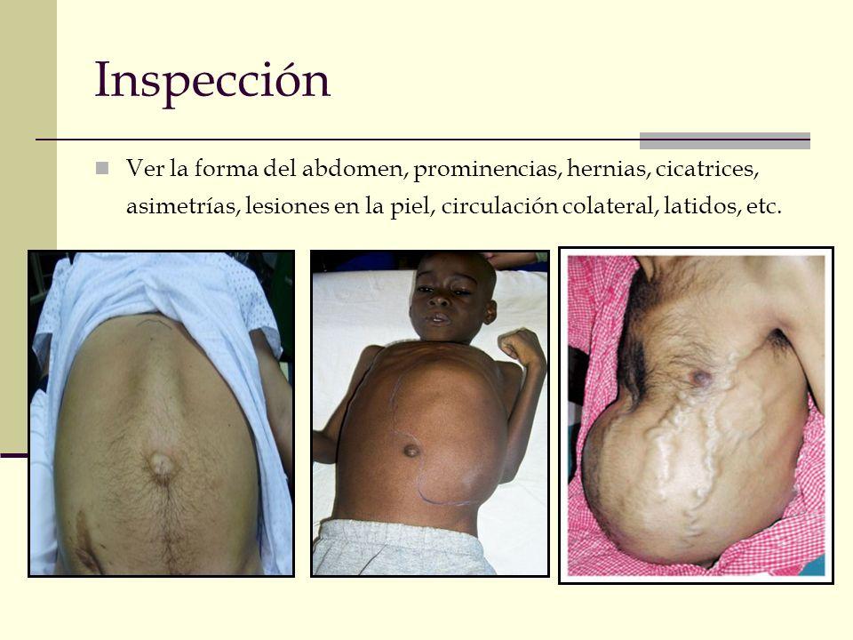 Inspección Ver la forma del abdomen, prominencias, hernias, cicatrices, asimetrías, lesiones en la piel, circulación colateral, latidos, etc.