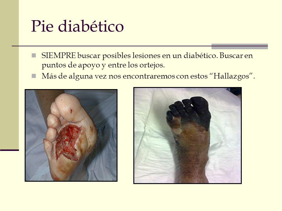 Pie diabético SIEMPRE buscar posibles lesiones en un diabético. Buscar en puntos de apoyo y entre los ortejos. Más de alguna vez nos encontraremos con
