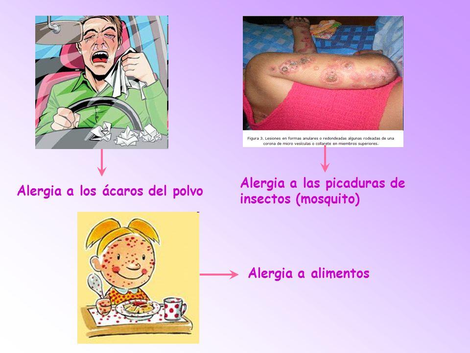 Alergia a los ácaros del polvo Alergia a las picaduras de insectos (mosquito) Alergia a alimentos